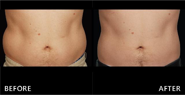 使用冷凍減脂療程讓腰腹贅肉減少,重現年輕腰身。(效果因個案而異)