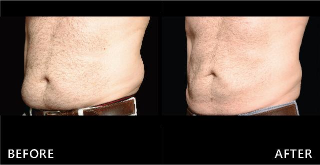 酷塑冷凍減脂使下腹贅肉、腰部脂肪堆積減少了,側面腰線線條變美。(效果因個案而異)