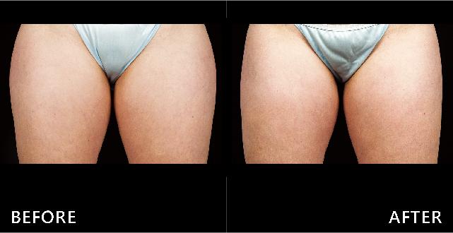 肥嫩的大腿內外側線條利用酷爾塑平冷凍減脂都修飾了,讓線條更俐落。(效果因個案而異)