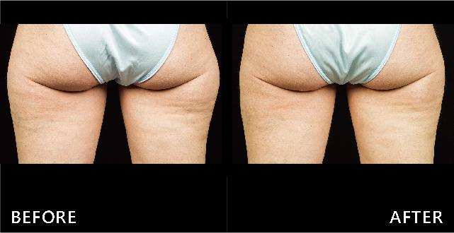 臀部外側脂肪堆積,只好利用低溫有效的酷塑冷凍減脂打擊脂肪細胞,術後臀線曲線變直順且自然。(效果因個案而異)