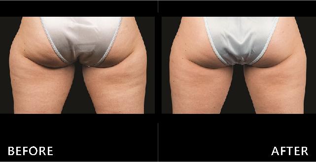 大腿外側脂肪堆積形成難看的馬鞍臀,在透過酷塑冷凍減脂局部曲線修飾變直許多。(效果因個案而異