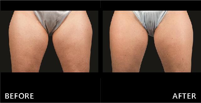 大腿內外側都利用冷凍減脂Coolsculpting讓線條都變美了(效果因個案而異)
