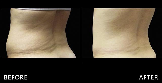 酷塑冷凍減脂幫助贅肉橫生的背部找回無暇曲線。視覺上年輕十歲。(效果因個案而異)