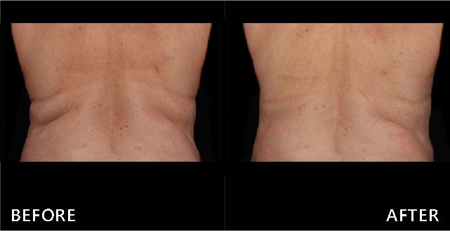 做完酷塑冷凍減脂後,腰背下垂脂肪減少,皮膚表面變得平坦,視覺效果變美。(效果因個案而異)
