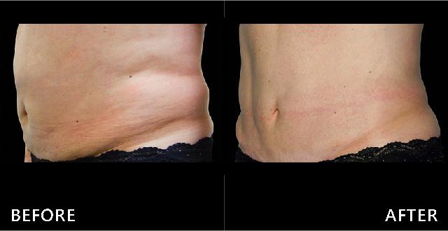 中年女性腰腹肥厚是常見的困擾,透過酷爾塑平冷凍減脂的低溫治療贅肉減少,穿衣服更好看。(效果因個案而異)