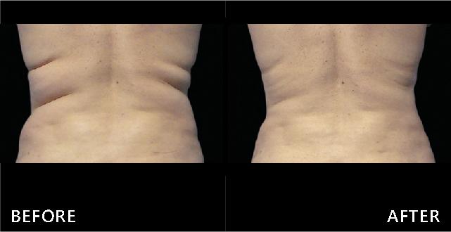 透過Coolsculpting冷凍減脂讓腰背脂肪堆積變少,背部變平坦,腰線變美了。(效果因個案而異)