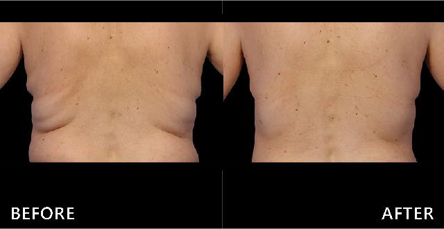 上背部老化贅肉下垂堆積,破壞整體線條美觀,選擇冷凍減脂療程後脂肪堆積減少使背部平順了。(效果因個案而異)