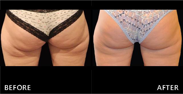 酷塑冷凍減脂修飾大腿外側臀形線條,因脂肪擠壓而出現的紋路減少了。(效果因個案而異)