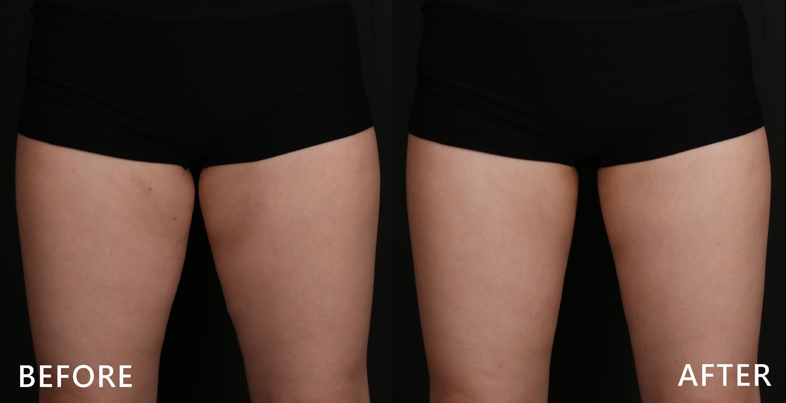 沒有大腿縫好難過,經由酷塑冷凍減脂治療後,重新找回纖細大腿。(效果因個案而異)
