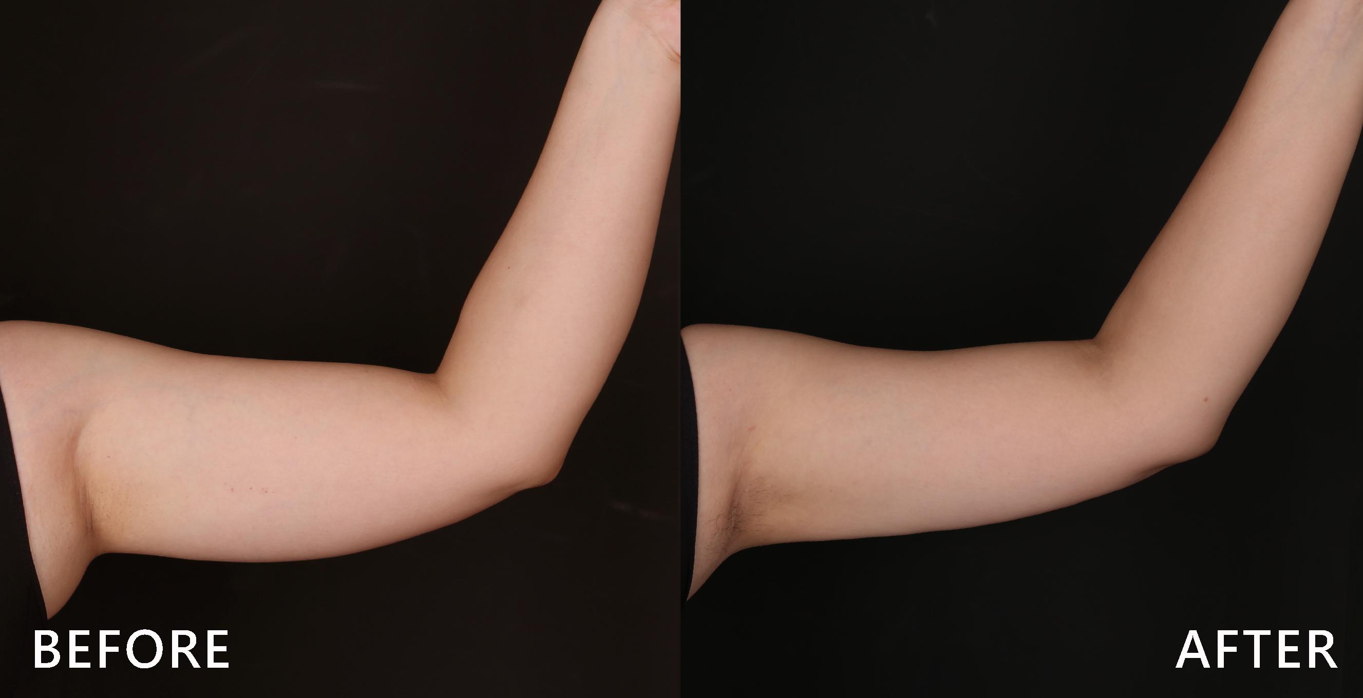 粗壯的手臂也能透過冷凍減脂雕塑,讓可怕的掰掰袖消失於無形。(效果因個案而異)