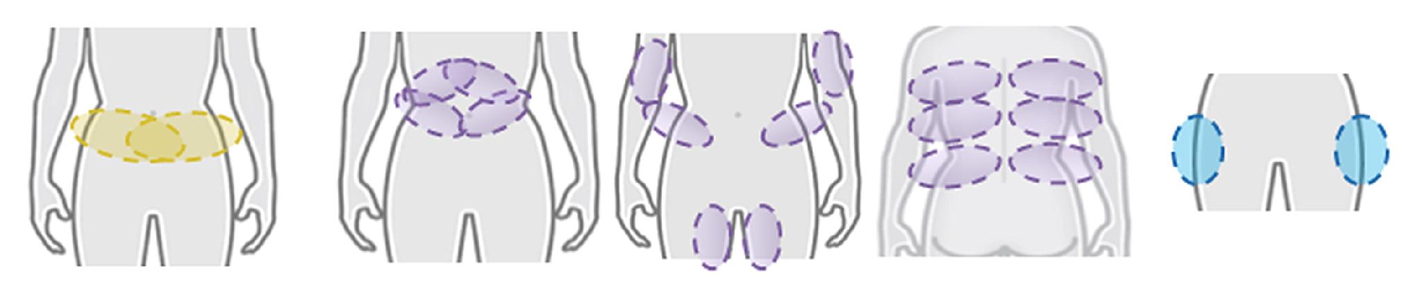 不同類型之手握把,其治療對應部位皆不同,應透過專業醫師評估脂肪囤積程度及走向後,才能找出適合的手握把