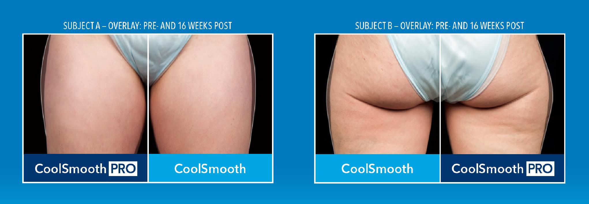 兩位案例均是利用CoolSmooth™及CoolSmooth Pro™治療大腿外側,經過16周後的變化可以明顯看出,經由CoolSmooth Pro™治療的那一側縮減幅度較大,效果較好。