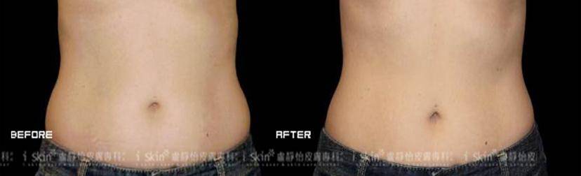 有腰身,腹部平坦,女人的自信就加分了。選擇酷爾塑平冷凍減脂療程後,肉肉的腰際變的線條分明。(效果因個案而異)