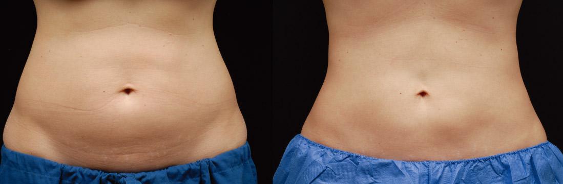 在冷凍減脂後,腰明顯變細很多,腰臀線條也變順了。(效果因個案而異)
