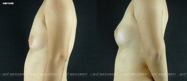 自體脂肪隆乳豐胸也可改善身體肥胖,實際效果因個案而異