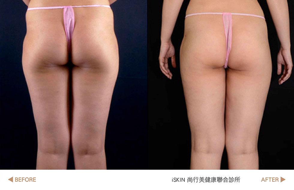 水刀抽脂後不只大腿有縫了,大腿側邊線條也好看,實際效果因個案而異