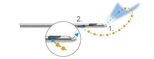 1.產生扇形水柱沖刷及剝離脂肪組織 2.同時水刀抽脂儀器產生的負壓將脂肪吸出