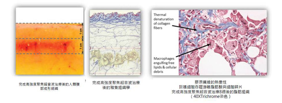 膠原纖維的熱變性:巨嗜細胞吞噬游離脂肪酸與細胞碎片,完成高強度聚焦超音波治療8週後的脂肪組織。研究結果顯示,高達91.3%的消費者在接受治療後,腹部平坦度明顯改善,而且腰圍平均減少一號尺寸。(文獻數據引用自此https://www.miinews.com/wp/pdf/eabg/Liposonix_WP_EAGsp10v7-031710.pdf)