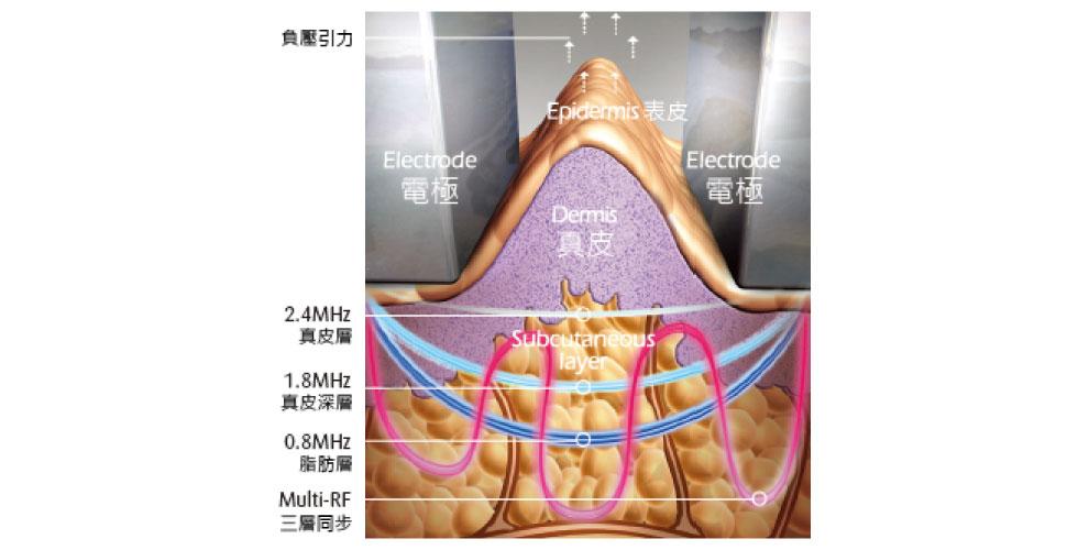 三層電波頻率同步,分別針對淺、中、深層的皮膚進行作用,選擇性加熱不 同的皮膚組織層