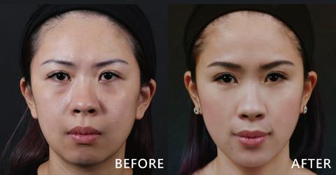 美髮造型師Blue常期受臉頰凹陷所苦,盧靜怡院長使用玻尿酸的凹陷的臉頰變得豐潤、明顯的淚溝也不見了!(效果因個案而異)