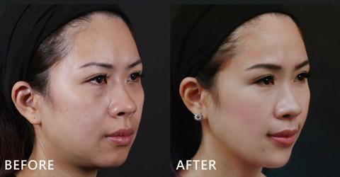 臉型的弧度也修飾得更順,下巴線條也變得更美,蘋果肌也出現了!Blue也大方分享治療心得,真的不會痛,只能說愛美無極限啊~(效果因個案而異)