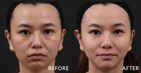 甜美的美容師Emily大方分享他的治療效果及心得,看原本凹陷的臉頰變得豐潤、明顯的淚溝也不見了!(效果因個案而異)