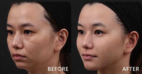 看Emily給盧靜怡院長全臉評估後,打完後臉型與五官看起來更立體、更集中。最主要是下顎線出現了,這好評價真是有目共睹。(效果因個案而異)