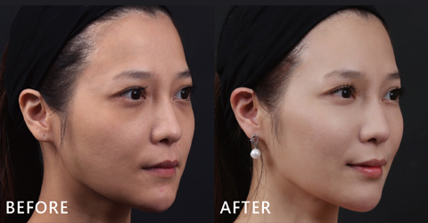 經盧院長專業技術利用玻尿酸填補後,臉型變V、下巴的曲線出來了。她忍不住和大家分享變美的心得囉。(效果因個案而異)