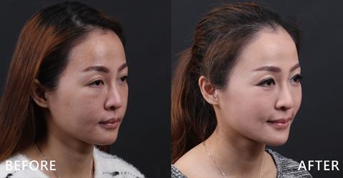 看看Rita的術後心得呈現,提升臉部立體感、臉型更加年輕,不再勞累苦命(效果因個案而異)