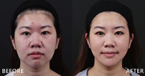 專業的護理人員也選擇盧靜怡院長做治療並大方做推薦,這次利用玻尿酸拉提中臉,雙頰更立體,兩邊也不再垂垮。(效果因個案而異)