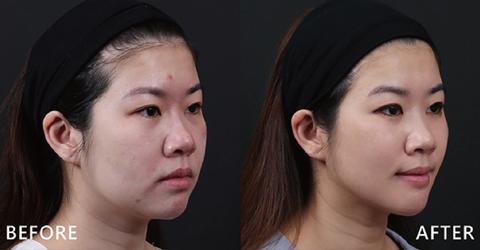 側臉照更可明顯看出輪廓線條變化,治療完後工作上更是獲得很高評價。(效果因個案而異)