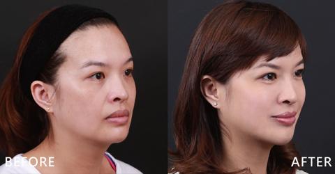微笑時法令紋再也不顯眼。利用玻尿酸整體的修飾讓臉部更柔和。(效果因個案而異)