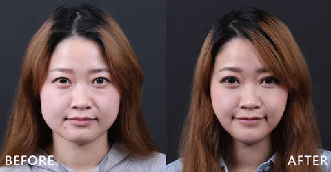 藝人李宜庭總是在直播節目上大方分享保養及彩妝,搜尋過盧靜怡院長的案例及評價好,特別選擇iSkin利用玻尿酸在下巴加強,複合除皺瘦臉針治療 (效果因個案而異)