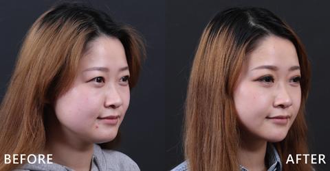 看李宜庭的複合式治療咬肌不再,延展下巴臉型更修長。真的差異很大。(效果因個案而異)