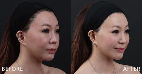 盧院長而非一昧充填,讓臉變大。由於兩邊臉型骨骼不對稱,故肌肉分布高度也不同,同時注意動態笑容時的肌肉拉扯及脂肪墊的位置改變,避免靜態時很美,但動態笑容變奇怪(效果因個案而異)