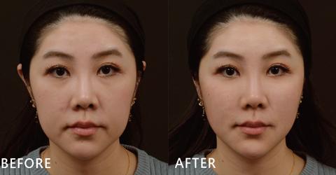 用玻尿酸改善中下半臉部比較鬆弛的狀況,不但臉變小了,嘴邊肉都不見了啦!(效果因個案而異)