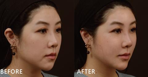 透過玻尿酸雕塑下巴線條,讓下巴曲線明顯出來,臉也看起來更緊緻了(效果因個案而異)