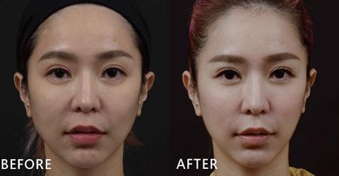 性感女模Via透過玻尿酸拉提中頰,除了讓最在意的法令紋不見了,蘋果肌的線條變圓潤自然,臉型也變V、下巴的曲線出來了!(效果因個案而異)