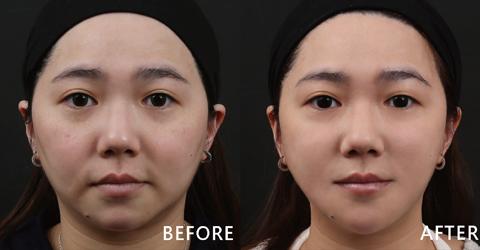 原本法令紋明顯、臉型跟唇形都不夠對襯,透過玻尿酸填補後法令紋真的消失了,嘴唇部分變得很勻稱、飽滿。(效果因個案而異)