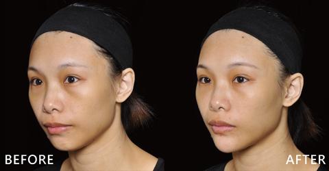 增長下巴看起來更立體,淚溝不再,疲累掃除(效果因個案而異)