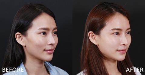 (右)修飾過蘋果肌讓它變得豐滿漂亮 實際施打效果因個案而異