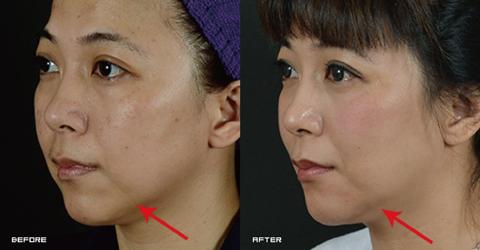 (右)下巴會顯老左右凹陷的消失了! 實際施打效果因個案而異