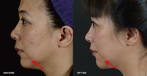 (右)法令紋也同時淡化,並有嘴角支撐的功能 實際施打效果因個案而異