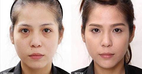(右)填充補足下巴後讓臉型更立體,疲憊的眼周及凹陷淚溝等問題也消失了 實際施打效果因個案而異