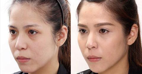 (右)治療後下巴線條更立體,眼下淚溝及法令紋都變淺了、看起來更年輕 實際施打效果因個案而異