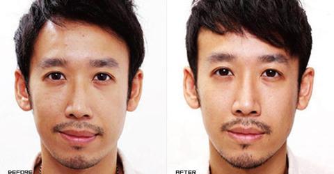 (右)原本較明顯的法令紋變淺了、中臉部位蘋果肌線條更自然 實際施打效果因個案而異