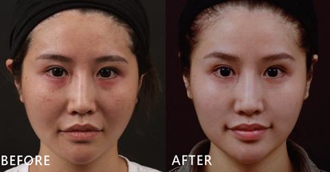 行銷公關Susan原本法令紋明顯、臉型跟唇形都不夠對襯,透過玻尿酸填補後法令紋真的消失了,嘴唇部分變得很勻稱、飽滿。(效果因個案而異)