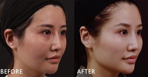 盧醫師是以玻尿酸拉提Susan中頰,自然修補蘋果肌後,法令紋自然就消失,臉型自然就UPUP飽滿了!(效果因個案而異)