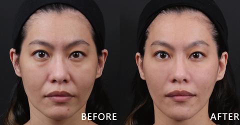 Jessica臉部原本凹陷的臉頰變得豐潤、明顯的淚溝也不見了!(效果因個案而異)