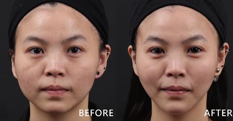 甜美護理師Candy蘋果肌的線條變圓潤自然,臉型也變V、下巴的曲線出來了。(效果因個案而異)